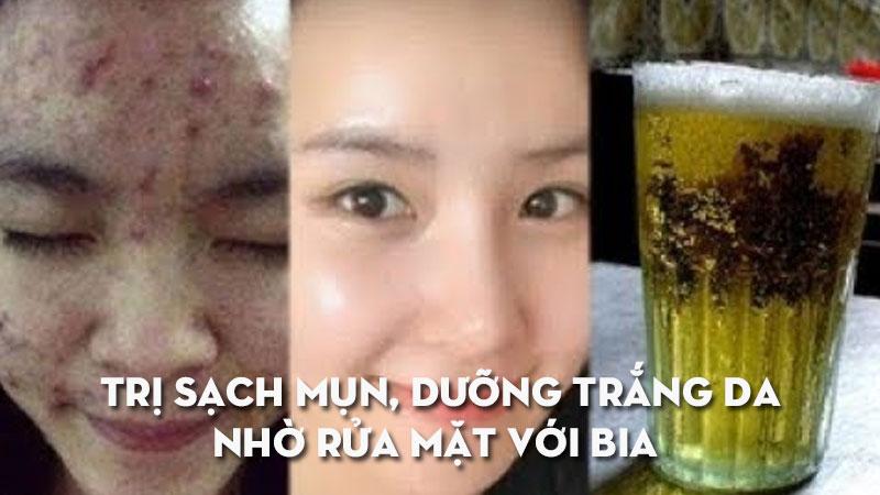 tri-sach-mun-duong-trang-da-nho-rua-mat-voi-bia-lien-tuc-trong-5-ngay-kemtrinamda.jpg